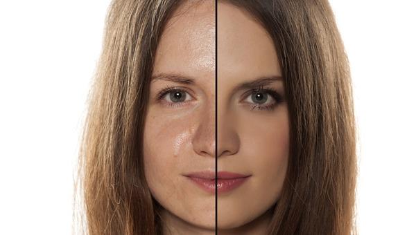 עור שומני לעומת עור רגיל