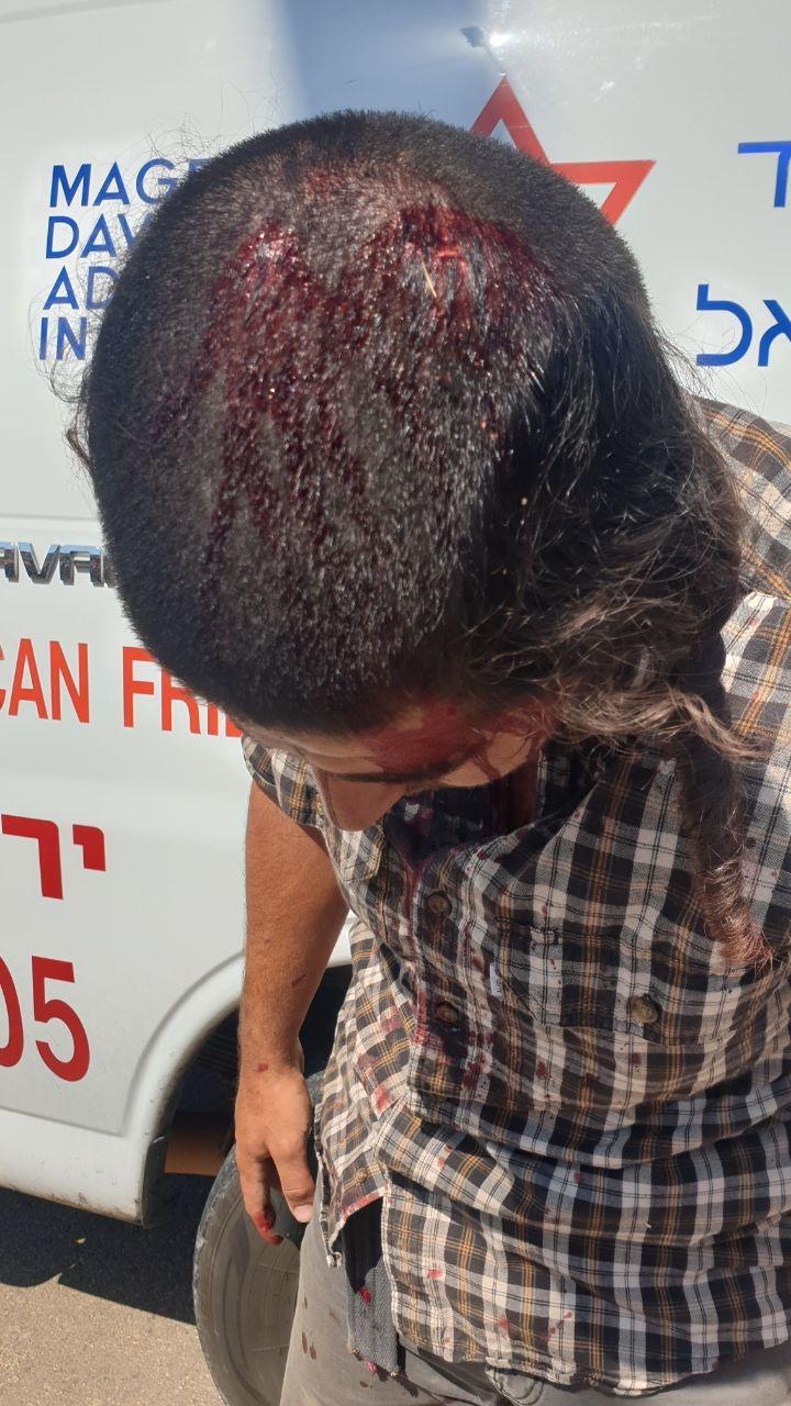 המחבל שניסה לרצוח עם מכוש חקלאי בשומרון ונורה - ערבי ישראלי