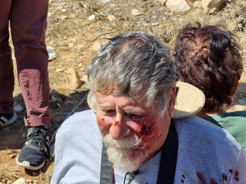 פעיל השמאל הקיצוני שנפגע בדחיפה